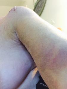 Cathy's Bruise1