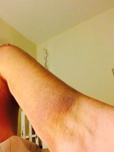Cathy's Bruise2